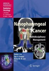 Nasopharyngeal Cancer: Multidisciplinary Management