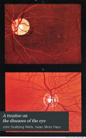 A Treatise on the diseases of the eye Am  Ed PDF