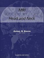 MRI Atlas of the Head and Neck PDF