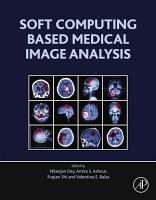 Soft Computing Based Medical Image Analysis PDF