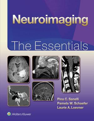 Neuroimaging  The Essentials