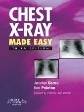 Chest X-Ray Made Easy E-Book: Edition 3