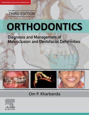 Orthodontics: Diagnosis of & Management of Malocclusion & Dentofacial Deformities - E Book