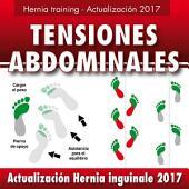 Hernia inguinal - Actualización 2017