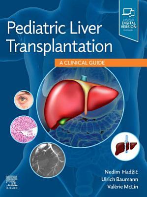 Pediatric Liver Transplantation E-Book