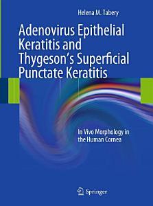 Adenovirus Epithelial Keratitis and Thygeson s Superficial Punctate Keratitis Book