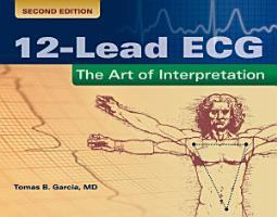 12 Lead ECG PDF