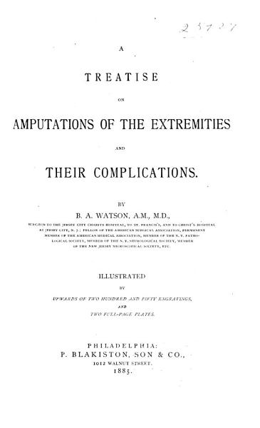 Download A Treatise on Amputations of the Extremities and Their Complications Book