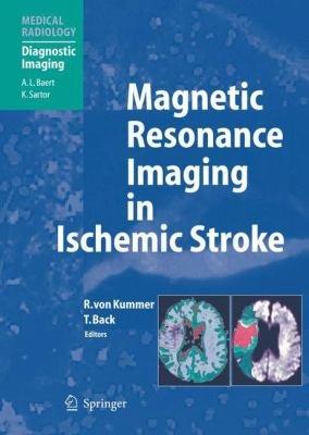 Magnetic Resonance Imaging in Ischemic Stroke PDF