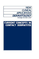 Current Concepts in Contact Dermatitis