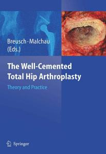 The Well Cemented Total Hip Arthroplasty
