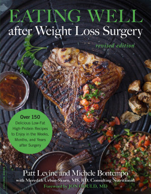 Eating Well after Weight Loss Surgery