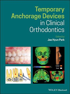 Temporary Anchorage Devices in Clinical Orthodontics
