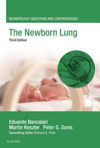 The Newborn Lung