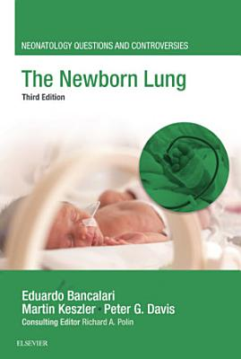 The Newborn Lung PDF