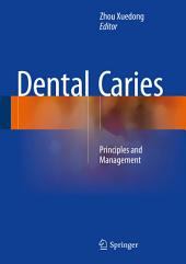 Dental Caries: Principles and Management