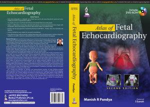 Atlas of Fetal Echocardiography PDF