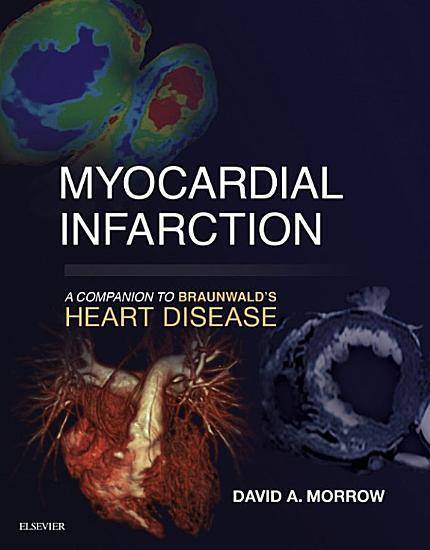 Myocardial Infarction  A Companion to Braunwald s Heart Disease E Book PDF