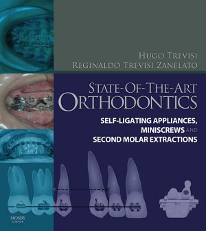 State of the Art Orthodontics E Book PDF