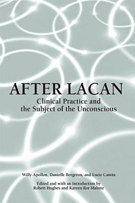 After Lacan PDF