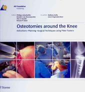 Osteotomies around the Knee: Indications-Planning-Surgical Techniques using Pla