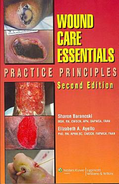 Wound Care Essentials PDF
