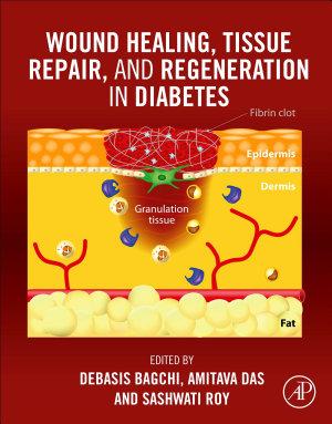 Wound Healing, Tissue Repair and Regeneration in Diabetes