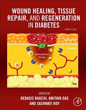 Wound Healing  Tissue Repair and Regeneration in Diabetes PDF