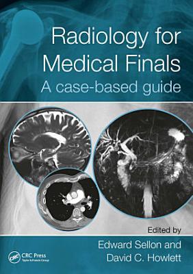 Radiology for Medical Finals PDF