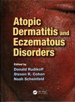 Atopic Dermatitis and Eczematous Disorders PDF