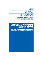 Tumours, Lymphomas and Selected Paraproteinaemias