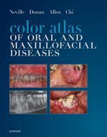 Color Atlas of Oral and Maxillofacial Diseases   E Book PDF