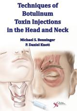 Techniques of Botulinum Toxin Injections in the Head and Neck