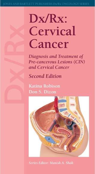 Dx Rx Cervical Cancer