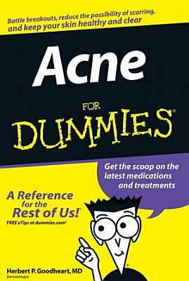 Acne For Dummies PDF