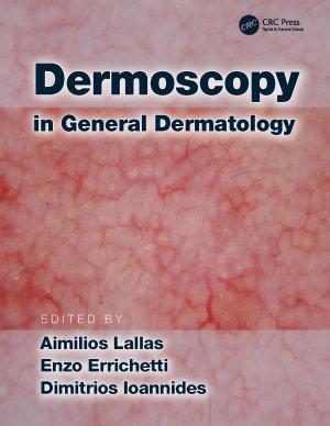 Dermoscopy in General Dermatology