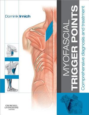 Myofascial Trigger Points   E Book PDF