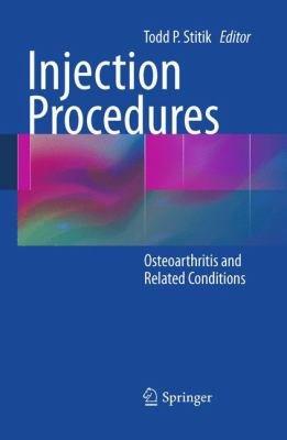 Injection Procedures