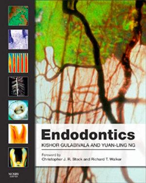 Endodontics E Book PDF