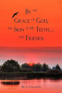 By the Grace of God  the Skin of My Teeth and Friends