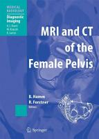 MRI and CT of the Female Pelvis PDF