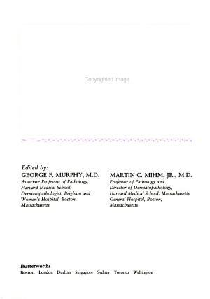 LYMPHOPROLIFERATIVE DISORDERS OF S PDF