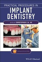 Practical Procedures in Implant Dentistry