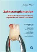 Zahntransplantation PDF