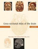 Cross sectional Atlas of the Brain PDF