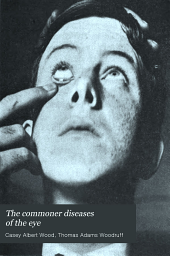 The Commoner diseases of the eye, how to detect and how to treat them
