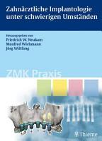 Zahn  rztliche Implantologie unter schwierigen Umst  nden PDF