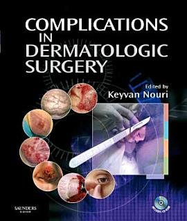Complications in Dermatologic Surgery Book