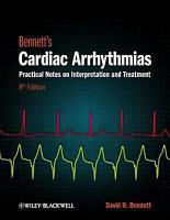 Bennett s Cardiac Arrhythmias PDF