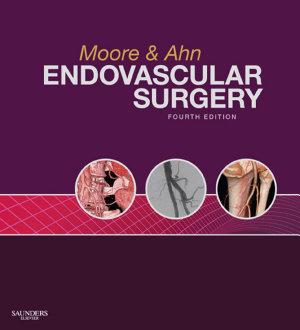 Endovascular Surgery E Book PDF